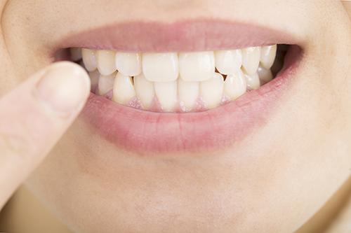 歯ぎしり・食いしばり予防