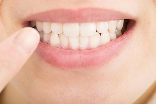「歯ぎしり・食いしばり」が歯を失う原因に