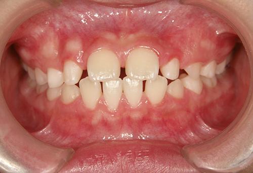 Case.6 舌癖による咬合異常