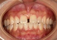 ▲上唇小帯の付着異常を放置しておいたため上の前歯の間に隙間が残ったと考えられます。