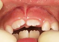 ▲7歳 上唇小帯が歯ぐきのそばまで付いているので小帯の処置を行うか、行わない場合いでも経過を見る必要があるでしょう。